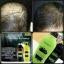 ศูนย์จำหน่าย HyBeauty Vitalizing Hair & Scalp Shampoo Conditioner ไฮบิวตี้ ไวทอลไลซิ่ง แฮร์ แอนด์ สแคลพ์ แชมพู คอนดิชันเนอร์ ผมหงอก ผมร่วง รังแค หนังศรีษะบาง มีตัวช่วย thumbnail 4