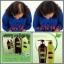 ศูนย์จำหน่าย HyBeauty Vitalizing Hair & Scalp Shampoo Conditioner ไฮบิวตี้ ไวทอลไลซิ่ง แฮร์ แอนด์ สแคลพ์ แชมพู คอนดิชันเนอร์ ผมหงอก ผมร่วง รังแค หนังศรีษะบาง มีตัวช่วย thumbnail 2